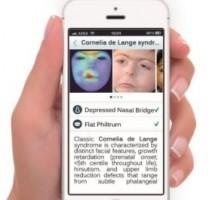 application Face2Gene